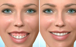 Learn about the orthognathic surgery